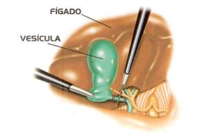 figado_vesicula